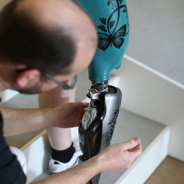 Prothesen aus Ihrem butschek Sanitätshaus
